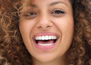 Clareamento Dental em Presidente Prudente