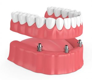 3 - Dentes parafusados a prótese
