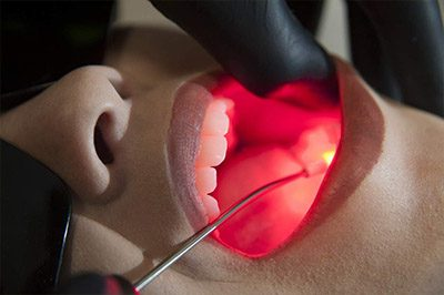 Laserterapia odontológica em Presidente Prudente